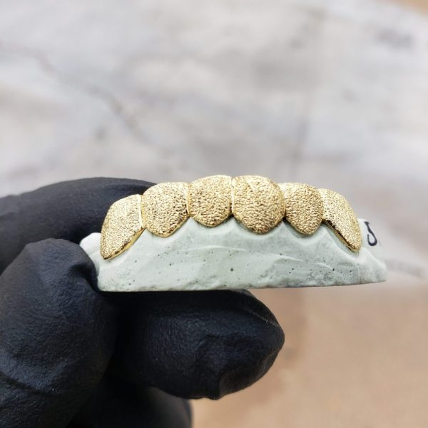 Yellow Gold Full Diamond Dust Grillz 2 - GotGrillz